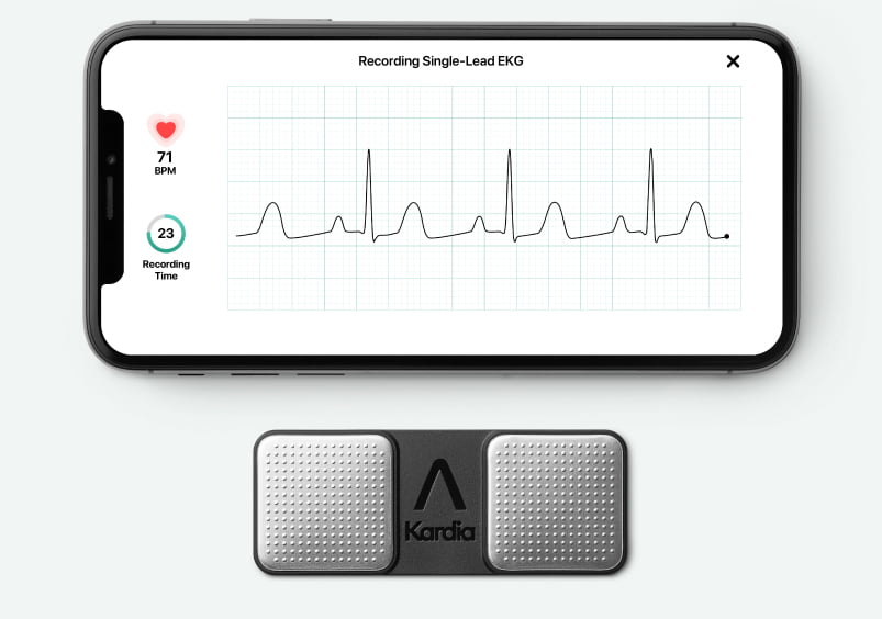 AliveCor's ECG algorithm gets FDA nod