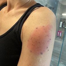 Delayed skin reaction after COVID vaccination