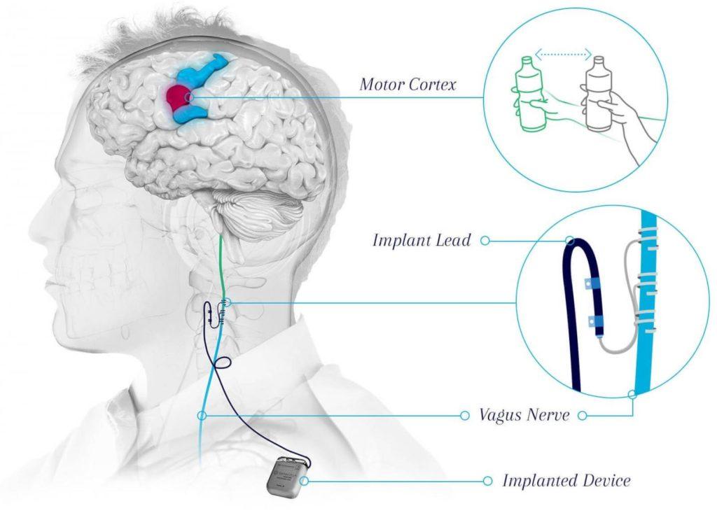 Diagram of vagus nerve stimulation device implant