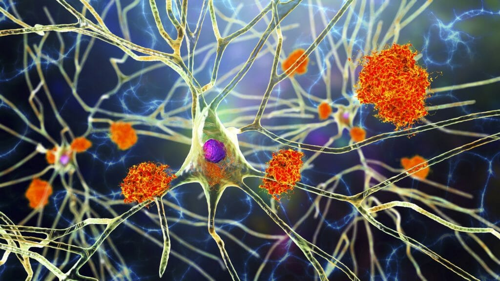Drugmakers ask FDA to approve another Alzheimer's drug, similar to Aduhelm